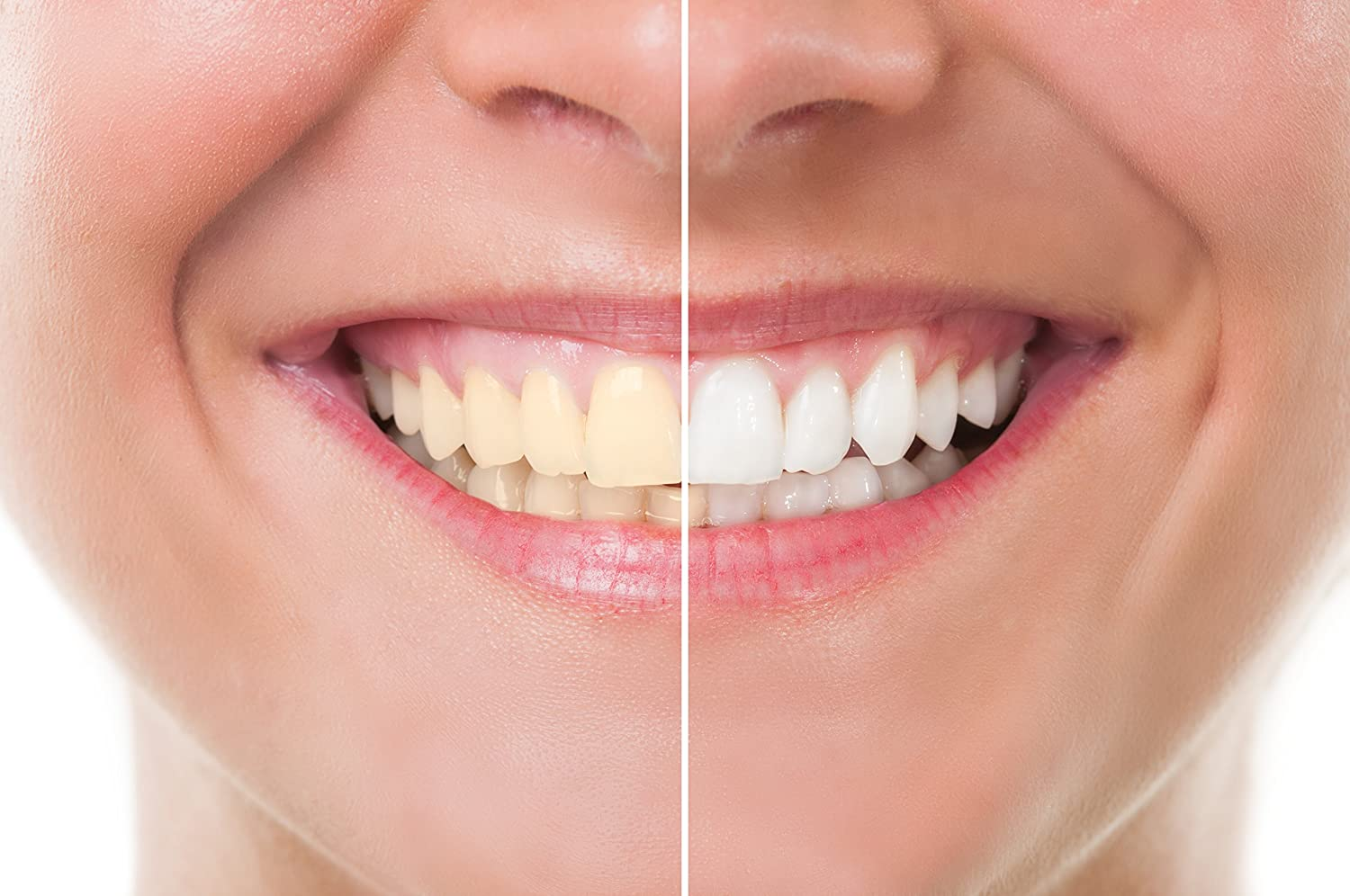 Do You Know The Top Teeth Whitening Options?